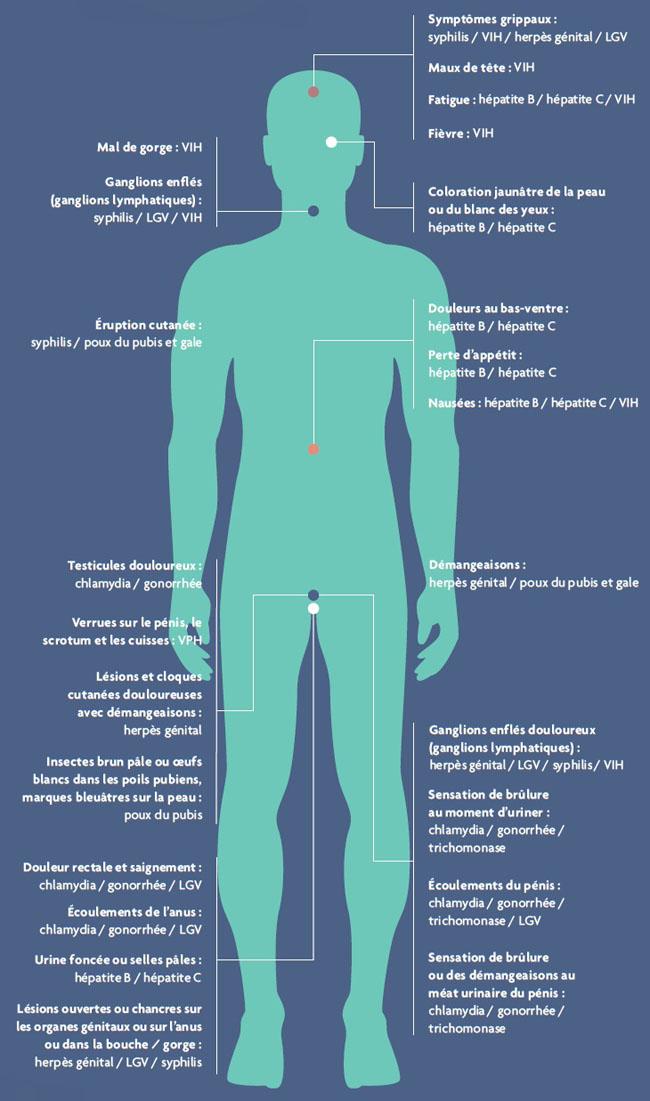 Papillomavirus pferde, A genitális szemölcsök tünetei a gégében
