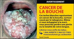 Le tabagisme et le cancer de la bouche for Interieur de la bouche