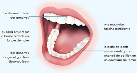 sensation pression dans les dents